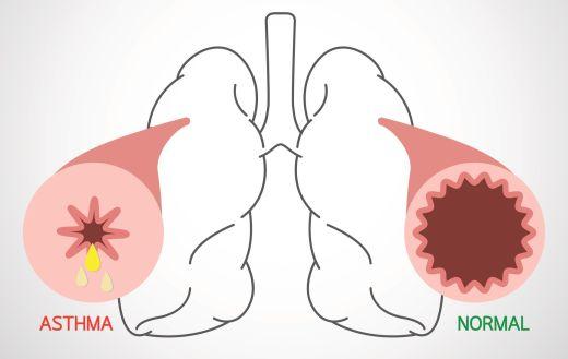 Grafik Atemwege normal und bei Asthma