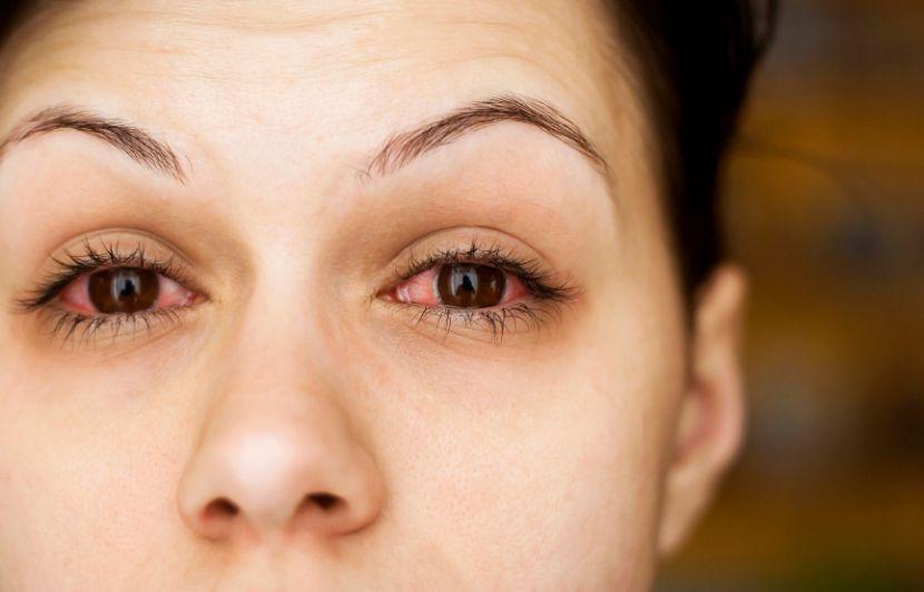 Hund auge herpes Blutiger Augenausfluss