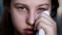 Homöopathie gegen sieben häufige Augenbeschwerden