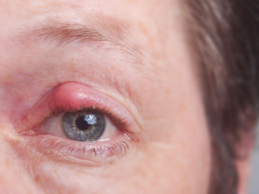 Hagelkorn – Ursachen und Behandlung