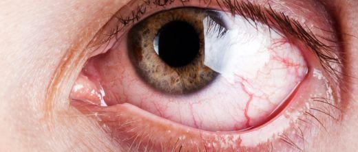 Stark gerötetes Auge