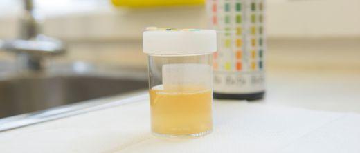 trüber urin flocken geruch