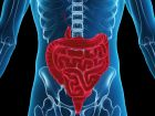 Aspirin schützt vor Darmkrebs