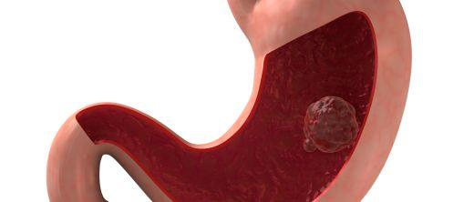 Magenspiegelung (Gastroskopie)