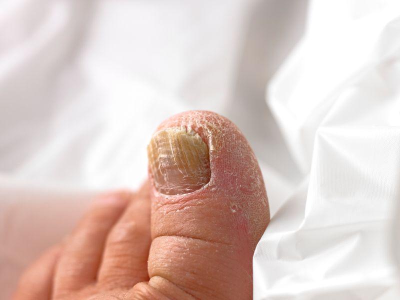 Rubromikos auf den Nägeln die Behandlung