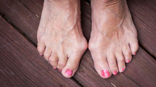 Die sieben häufigsten Fußbeschwerden