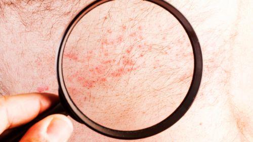 Neurodermitis erkennen – die wichtigsten Symptome!