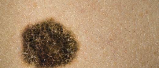 hautkrebs malignes melanom