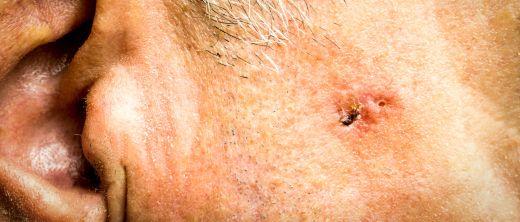 Basalzellenkrebs (Basaliom): Therapie