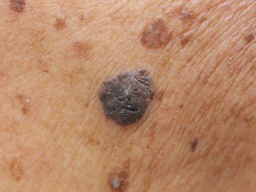 Schwarzer Hautkrebs oder Muttermal? Diese Bilder helfen beim Erkennen!
