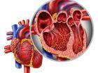 Herzklappenfehler