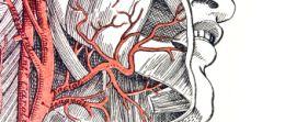 Karotisstenose (Halsschlagaderverengung)