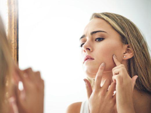 Homöopathie: Hilfe bei Akne und Pickeln