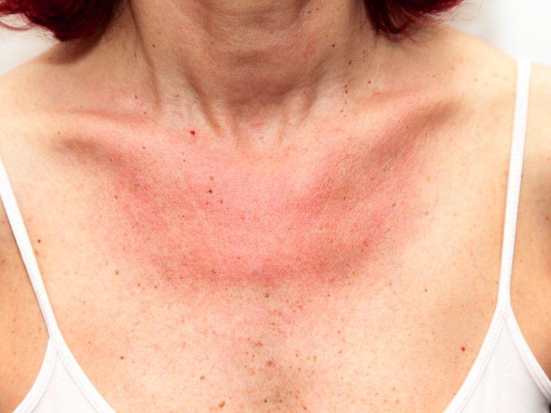 Sonnenallergie homöopathisch behandeln