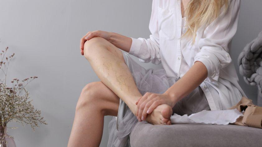 Thrombose: Symptome und Therapie des Blutgerinnsels