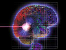 Hirnstimulator schaltet Depression ab