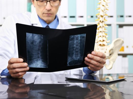Bildgebende Verfahren bei Rückenschmerzen