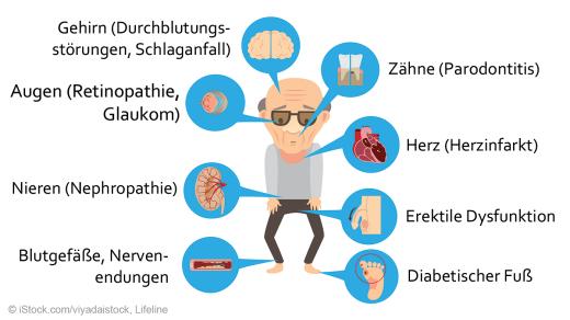 Begleit und folgeerkrankungen diabetes mellitus
