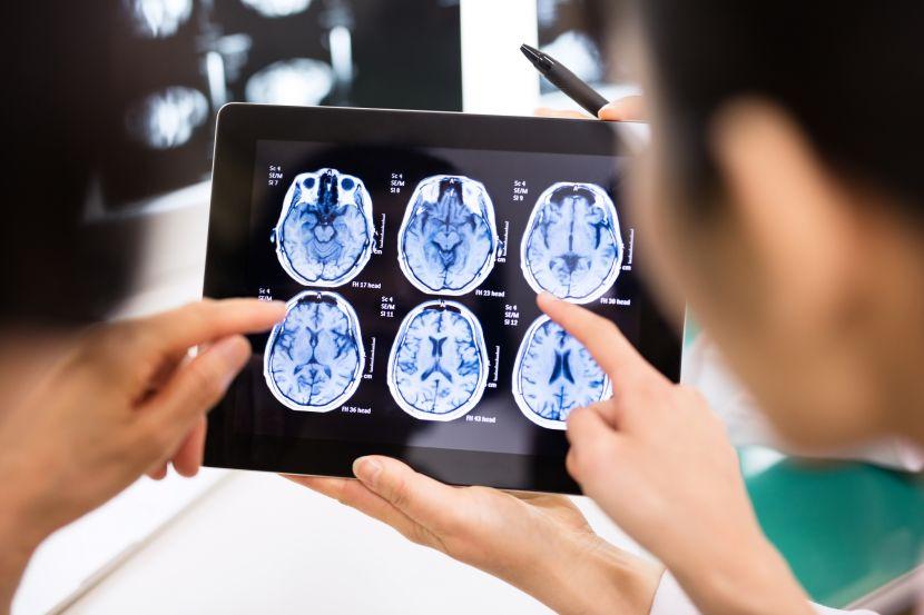 Cluster-Kopfschmerz • Symptome, Ursachen & Therapie