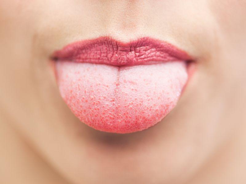 Lippen ablecken fördert eingerissene Mundwinkel