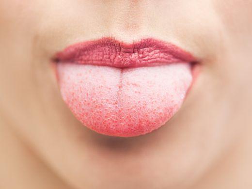 Zungenkrebs (Zungenkarzinom): Symptome und Prognose