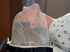 speiseröhrenkrebs behandlung strahlentherapie.jpg