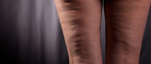Lipödem sind Fetteinlagerungen an den seitlichen Oberschenkeln, die umgangssprachlich als Reiterhosen bezeichnet werden.