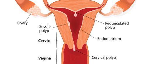 gebärmutterpolypen