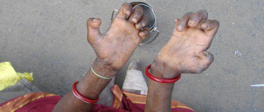 Händer einer Frau mit Lepra