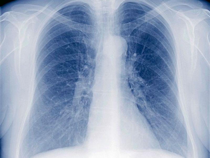 Was ist mit dieser Lunge los?