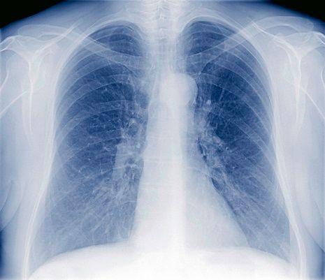 die behandlung der tuberkulosen meningitis bei erwachsenen