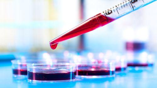 Conteo sanguíneo: valores importantes y su significado