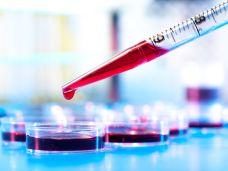 Labordiagnostik bei Rueckenschmerzen-78429918.jpg