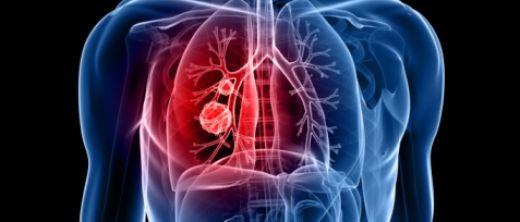 Lunge,Lungenkrebs,Torso