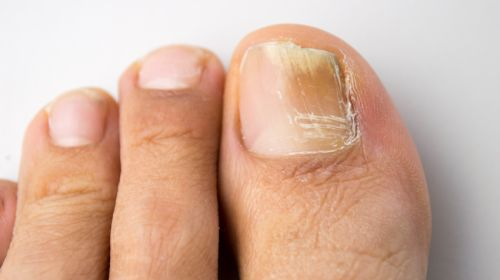 Candida der Nägel die Behandlung