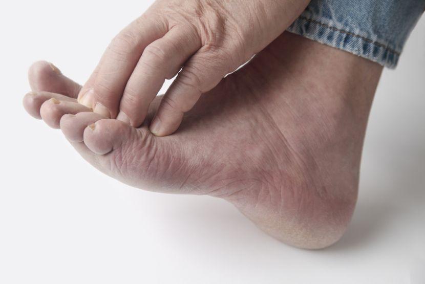 Fußpilz Behandeln Das Hilft Von Creme Bis Hausmittel