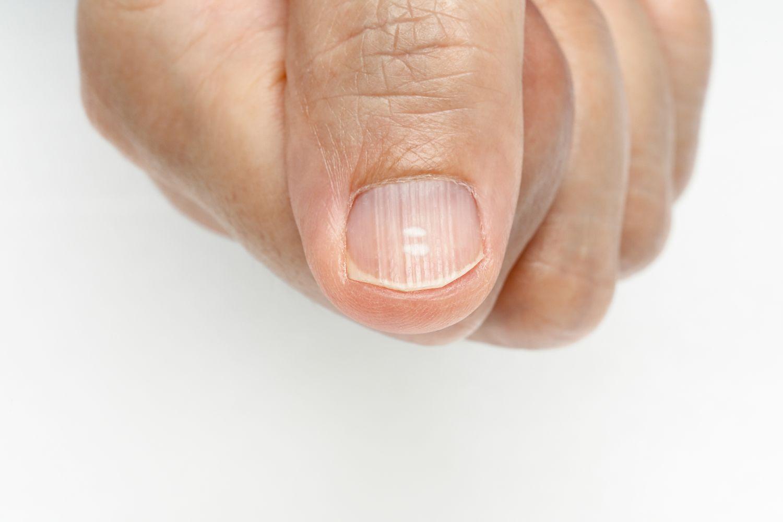 Ab fingernagel geht Fingernagel