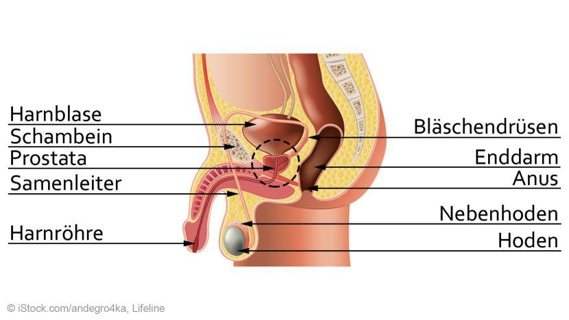 prostataentzündung dauert lange
