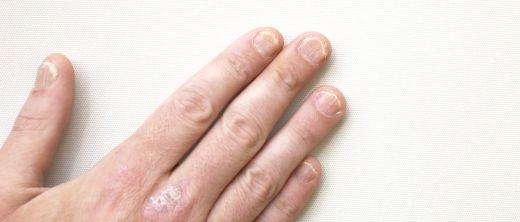 Schuppenflechte an den Fingern und Nägeln