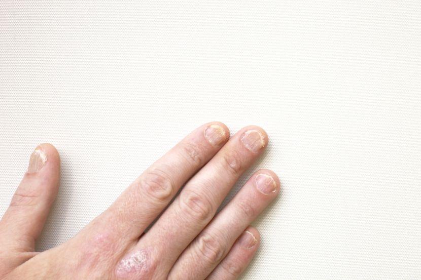 Langsrillen Flecken Co Nagelkrankheiten Erkennen