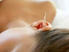 Rauchen mit Akupunktur abgewöhnen