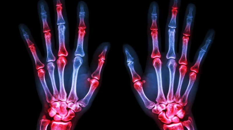 Diäten zur Verbesserung der Arthritis