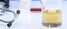 Blut im Urin (Hämaturie) – ein Symptom, das Sie ernst nehmen sollten