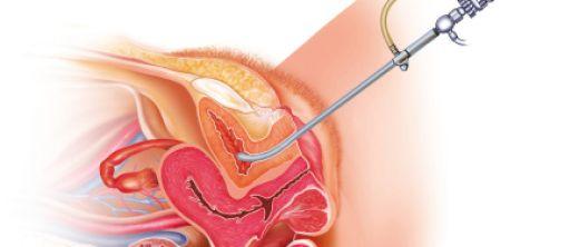 blasenspiegelung bei blut im urin.jpg