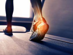 Fersenschmerzen – so verhindern Sie das Stechen im Fuß