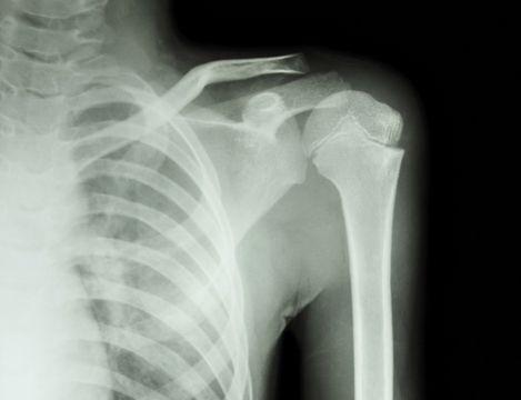 Schulterschmerzen • Was tun bei Schmerzen in der Schulter?