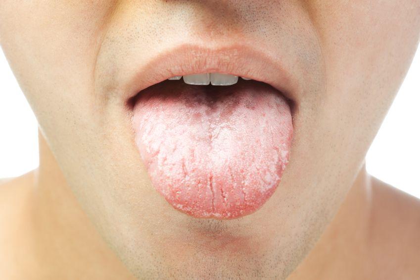 Belegte Zunge Was Steckt Dahinter