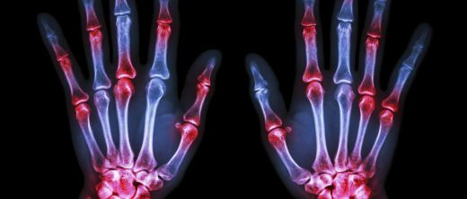 Rheuma Hand Schmerzpunkte.jpg