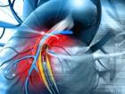 Stent: Stütze für Gefäße und Hohlorgane