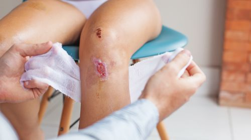 This is how you accelerate wound healing